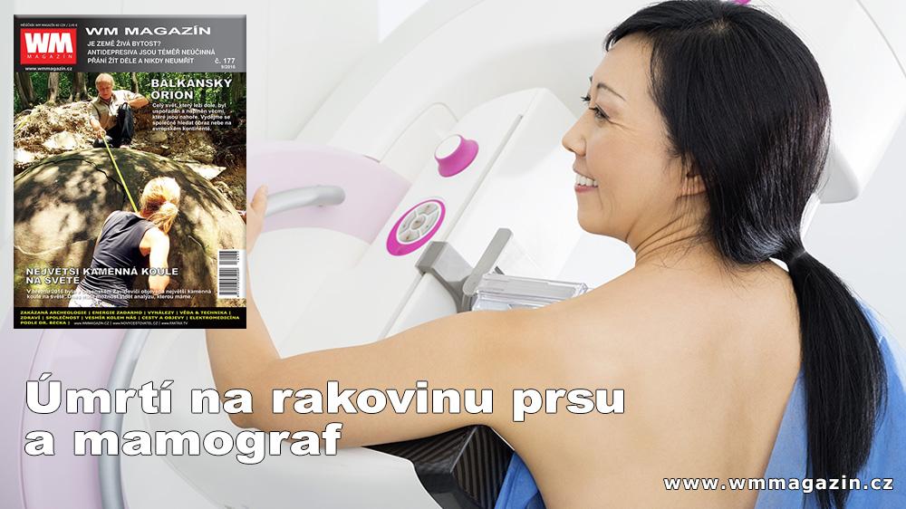 wm-177-rakovina-prsu-mamograf.jpg